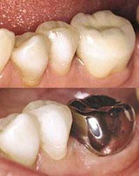 Коронки на передние и жевательные зубы: какие лучше и какие бывают